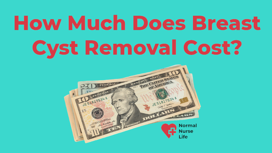 How much does breast cyst removal cost