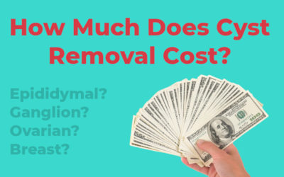 How Much Does Cyst Removal Cost?