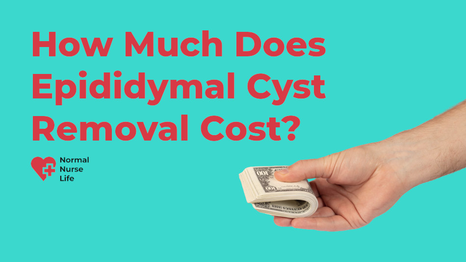How much does epididymal cyst removal cost