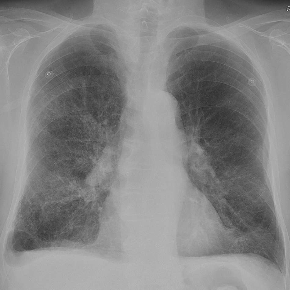 Nursing care plan for COPD exacerbation