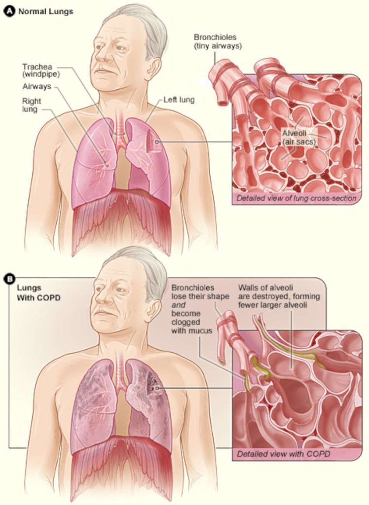 Nursing care plan for a patient with COPD