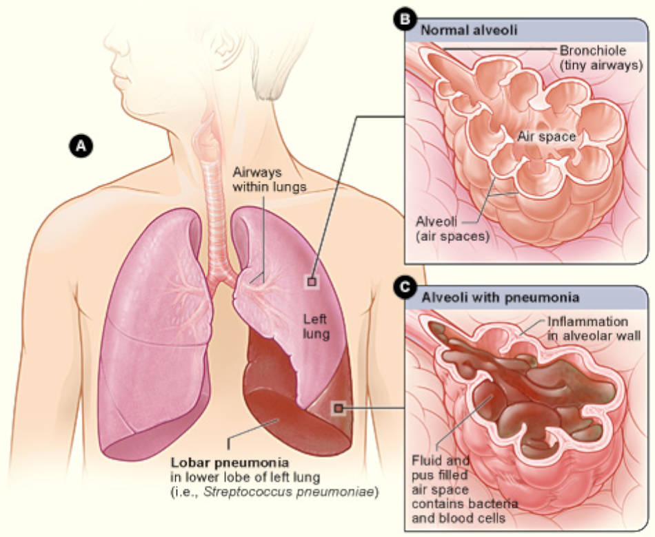 Nursing care plan for an elderly patient with pneumonia