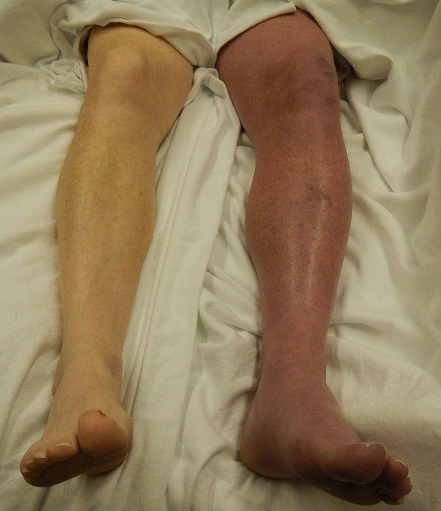 Nursing care plan for DVT in leg