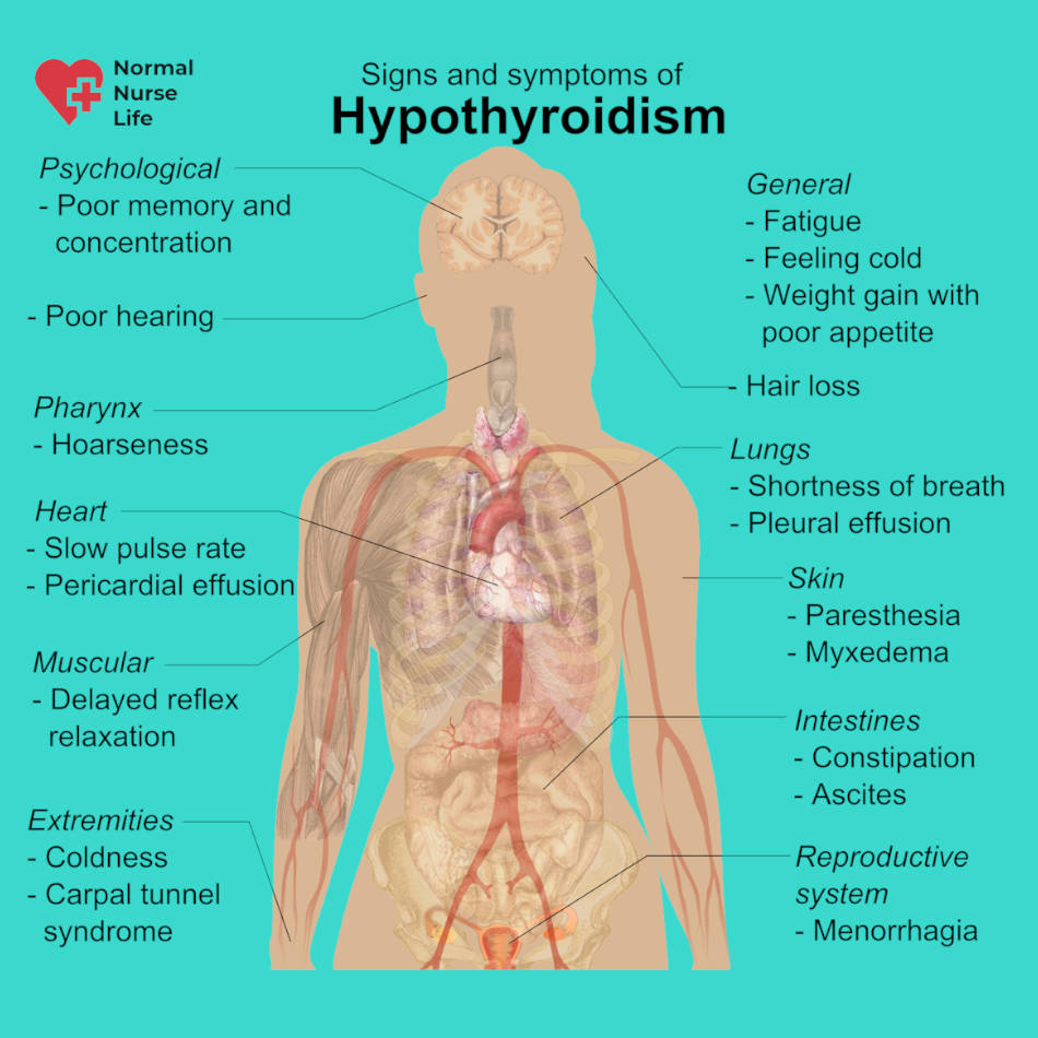 Nursing care plan for hypothyroidism patient