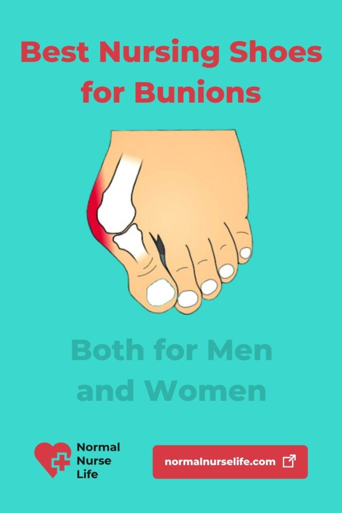 Best Nursing Shoes for Bunions