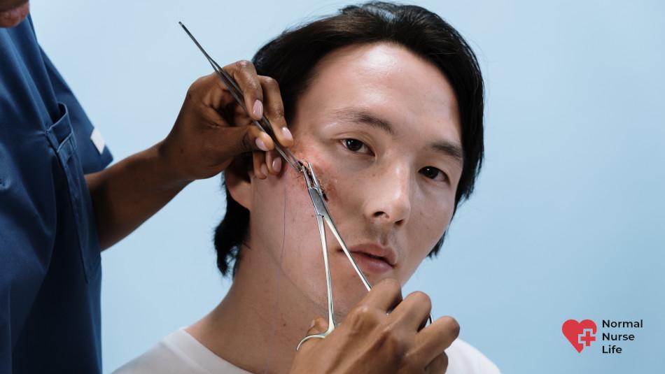 Can nurses remove stitches