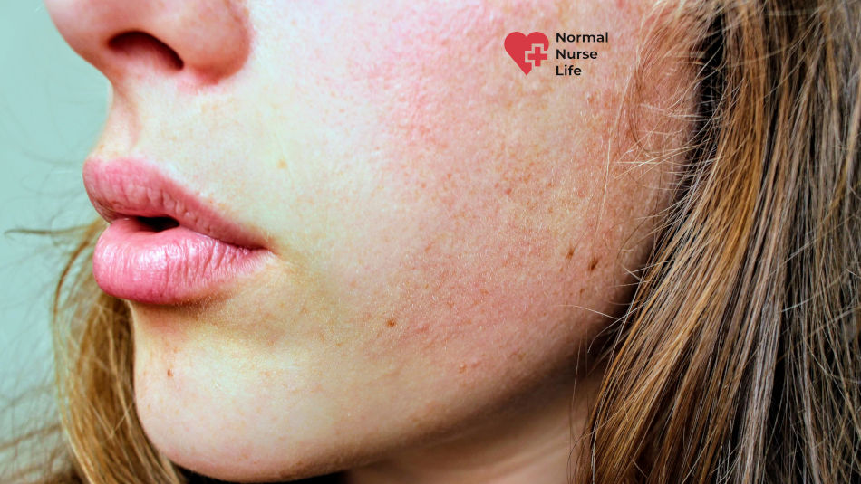 Can you be a nurse with eczema